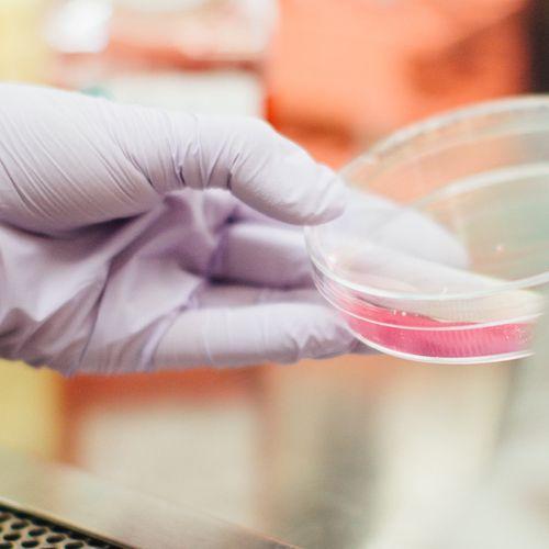 Afbeelding van Nederland betaalt dubbel aan laboratoria voor analyse van coronatests